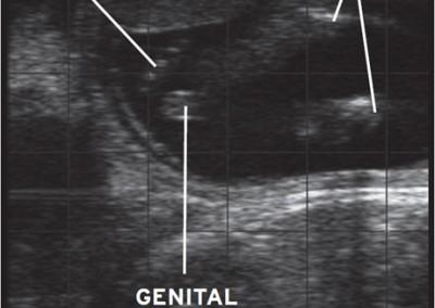 Foetal Sexing